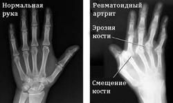 Показания и противопоказания при ревматоидном артрите для повседневной жизни