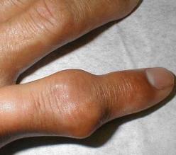 История болезни подагра подагрический артрит