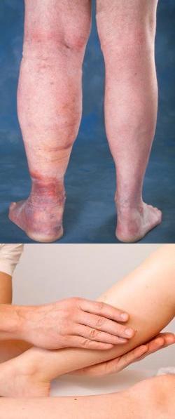 Левая нога отекла при беременности