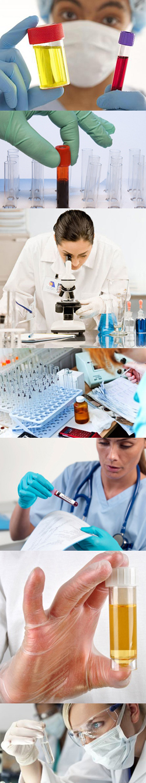 Причины, лечение повышенного уровня мочевины в крови у мужчин и женщин