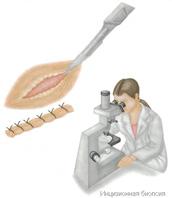Показания к биопсии 20