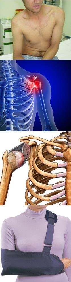 операция вывиха плечевого сустава видео