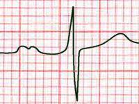 Как читать ЭКГ? Как расшифровать электрокардиограмму самостоятельно? Что показывает ЭКГ