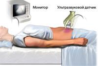 УЗИ органов малого таза: что показывает, как делают, как подготовиться?
