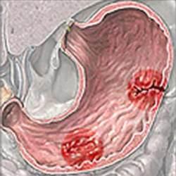 В каких случаях маточные кровотечения считаются нормой