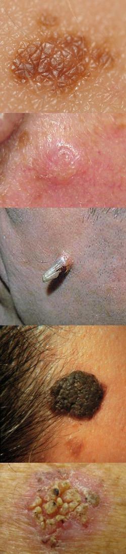 Кератома (кератоз) – виды (фолликулярная, себорейная, актиническая, роговая), причина образования, лечение (удаление), народные средства, фото