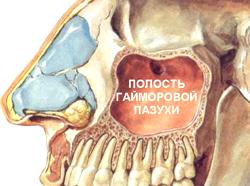 Традиционной медицине известно три вида лечения гайморита.