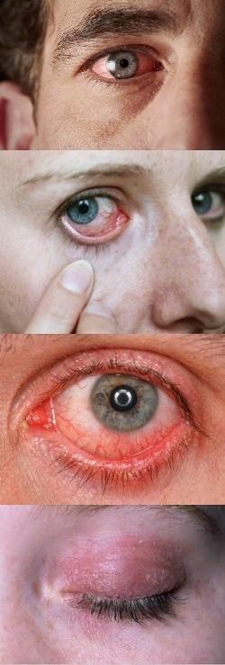 Покраснение глазного яблока - Причины и лечение