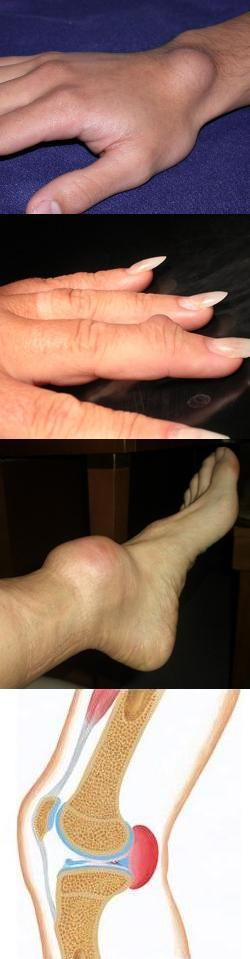 Гигрома стопы и лечение в домашних условиях 112