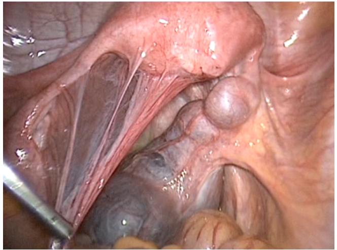 Бесплодие у мужчин причины виды и диагностика