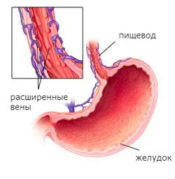 Чем опасен варикоз во время беременности