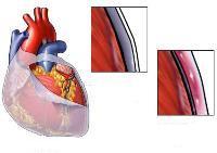 Боль в сердце: разновидности, причины и способы лечения
