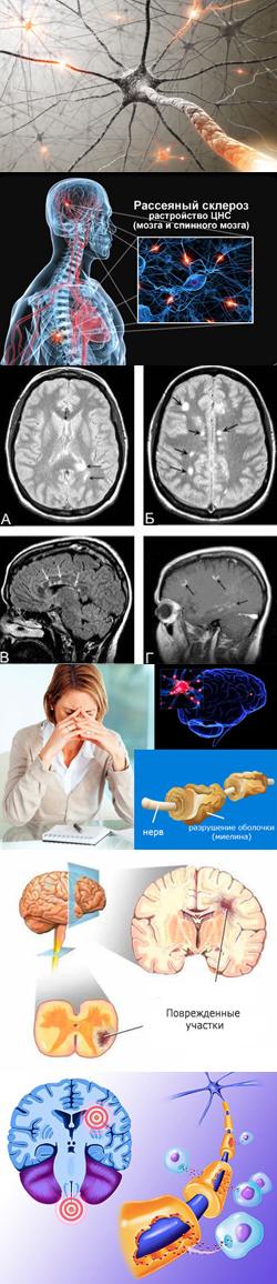 Рассеянный склероз. Причины, факторы риска и механизмы развития ...
