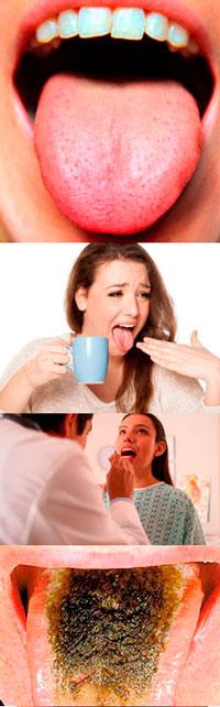 На кончике языка белое пятно
