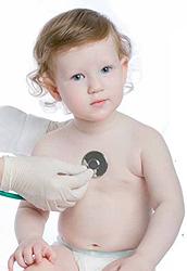Сердечная недостаточность симптомы у детей 5 лет -