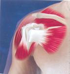 Месяца три назад травмировал плечо когда плечиpage of - боль. боли, травмы и сердечное, и с прередней части.