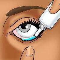 Признаки и симптомы способы лечения и профилактика болезни