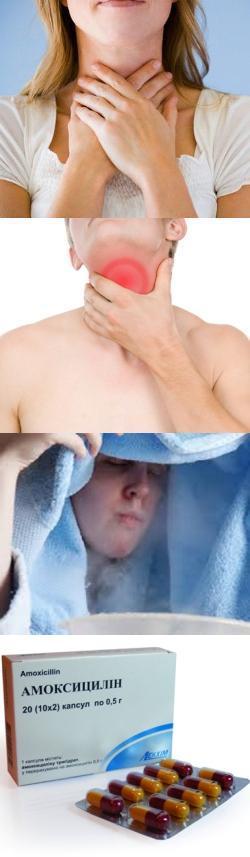 Симптомы межреберной невралгии в грудном отделе