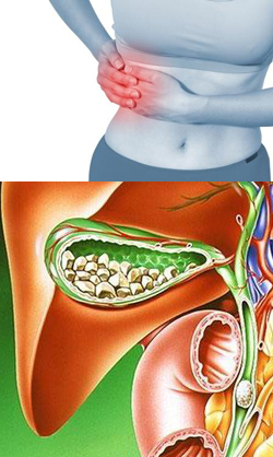 Желчекаменная болезнь симптомы и предупреждение