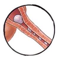 Во время беременности рези при мочеиспускании