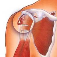 Тендинит локтевого сустава лечение