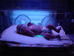 Желтушка у новорожденных симптомы причины и лечение