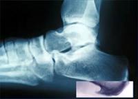 Болит пятка больно наступать — Причина острой боли, методы лечения, советы врачей