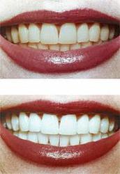 Можно ли отбелить зубы перекисью водорода