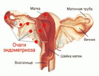 Почему у беременной болит низ живота как при месячных