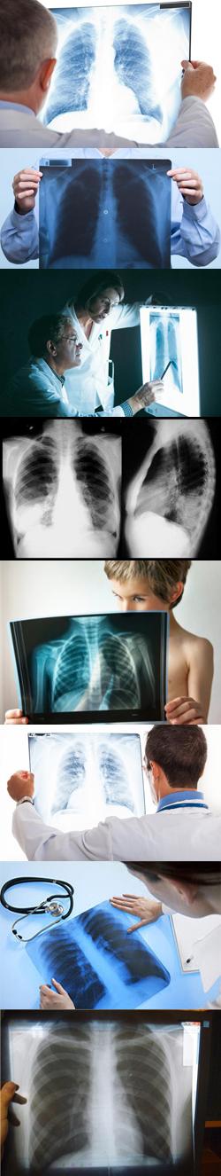 Как выглядят легкие курильщика на рентгене
