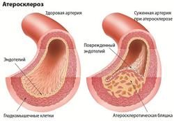 Атеросклероз - симптомы, причины, последствия