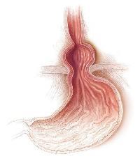 Болит грудь после инфаркта
