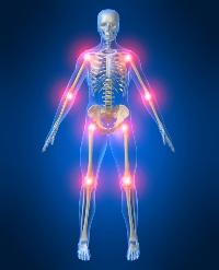 Симптомы и лечение подвывиха плечевого сустава