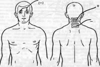 Электрофорез с цинком в гинекологии показания — Лор и Простуда