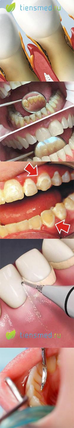 Нужно ли удалять зубной камень последствия