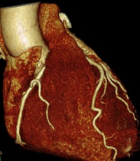 Коронарография сердца назначение и процедура обследования