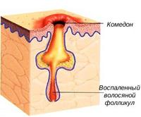 Гормональные нарушения при акне