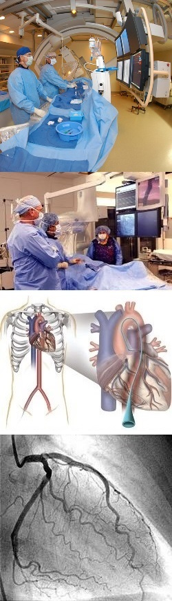 Коронароскопия сосудов сердца что это такое