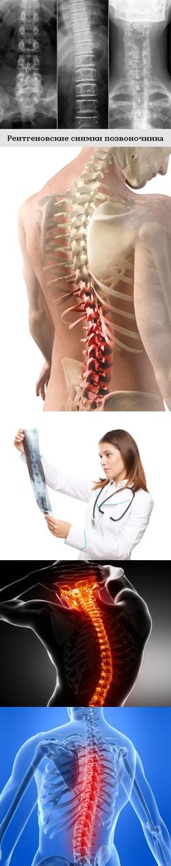 Как выглядит сколиоз на рентгене