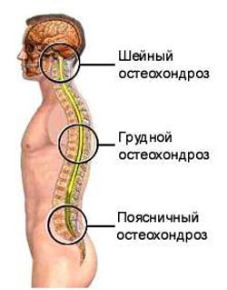 Помогает ли аппликатор Кузнецова в лечении остеохондроза