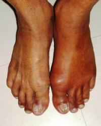 Боль в левом колене при движении