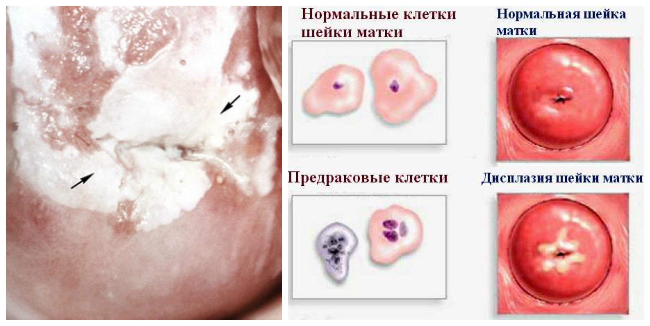 Меланоплакия фото