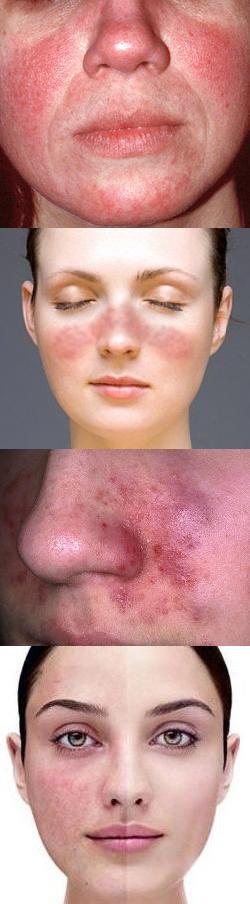 Почему покраснело лицо. Красное лицо у женщины – причины. Аллергия на холод