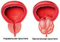 Простатита нет а боли есть