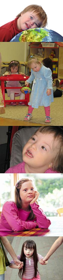 Виды умственной отсталости у детей