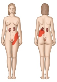 Пиелонефрит Симптомы пиелонефрита Профилактика и