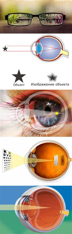 симптомы и признаки паразитов в организме
