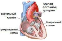 Не работает один клапан сердца