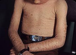 Кожные заболевания у детей и инфекции кожи ребенка