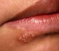 мазь от аллергии на щеках